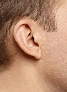 miniBTE hearing aids audiology Sydney